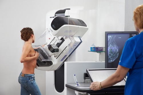 3d digital breast tomosynthesis