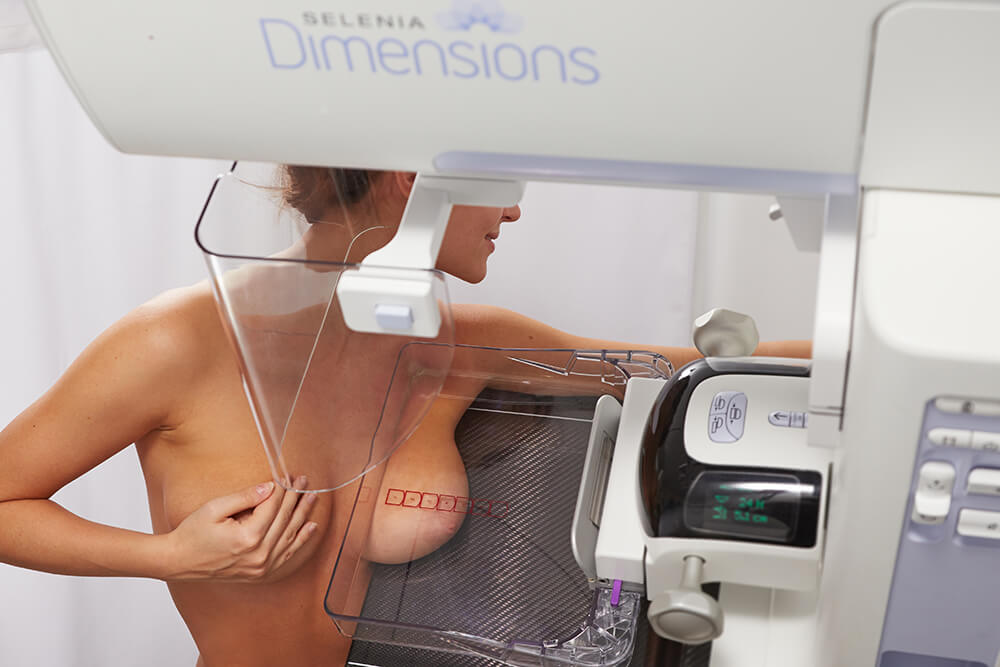 Mammography with tomosynthesis
